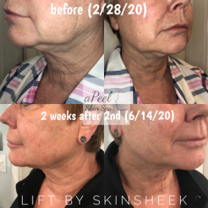 The most amazing results I've seen yet...  Photo